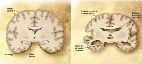 Corte frontal de un cerebro sano (izquierda) y con alzhéimer (derecha) | Fuente: Wikimedia Commons